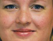 'Gebruik ROM om behandeluitkomsten te verbeteren'